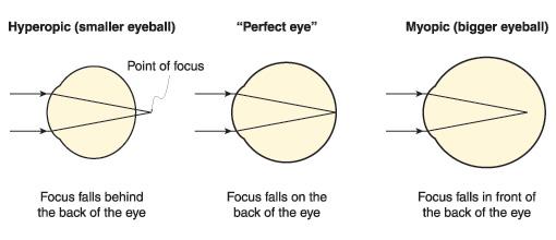 point-of-focus.jpg