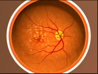 A Representation of Age-related Macular Degeneration
